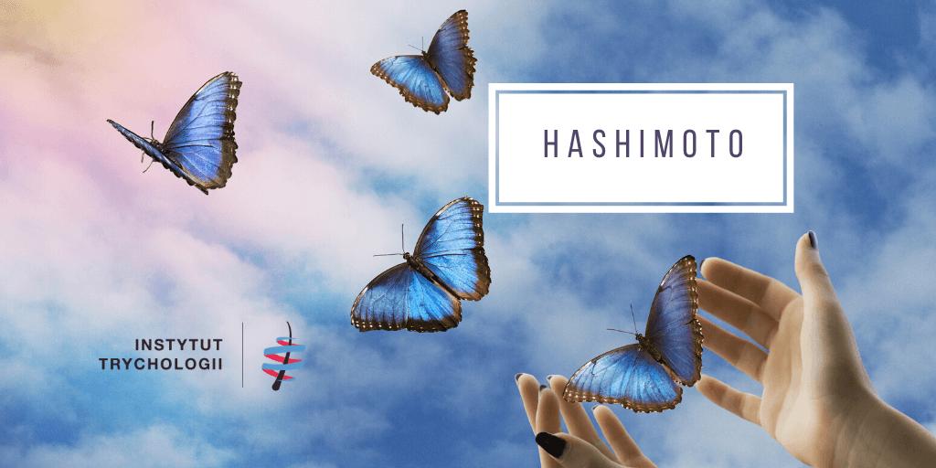 hashimoto a wypadanie włosów